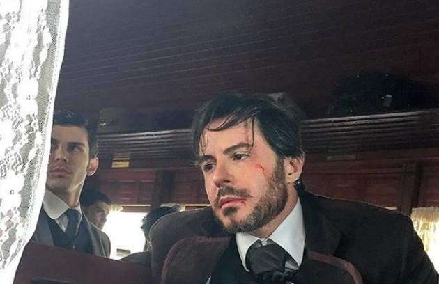 Ricardo Tozzi postou uma foto em que seu personagem, o vilão Xavier, aparece ferido (Foto: Reprodução Instagram)