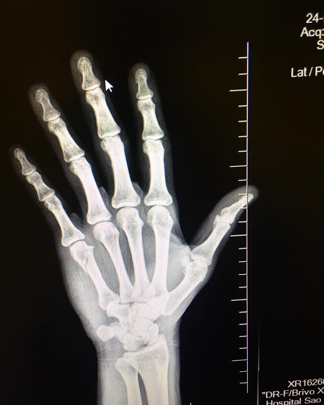 Armando Babaioff mostra raio-x de mão (Foto: Reprodução)