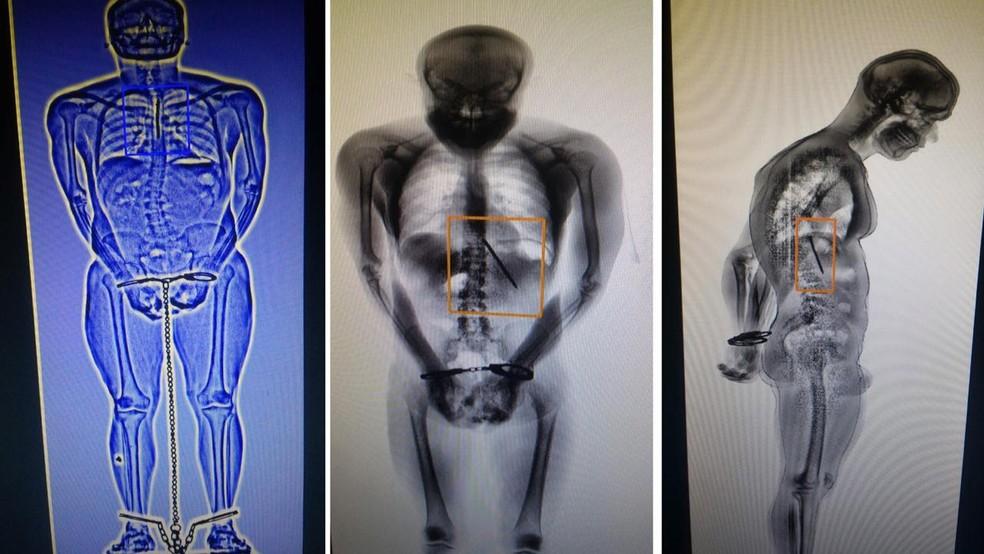 Exame de scanner mostra que detento engoliu faca para fugir de presídio no DF — Foto: TV Globo/Reprodução