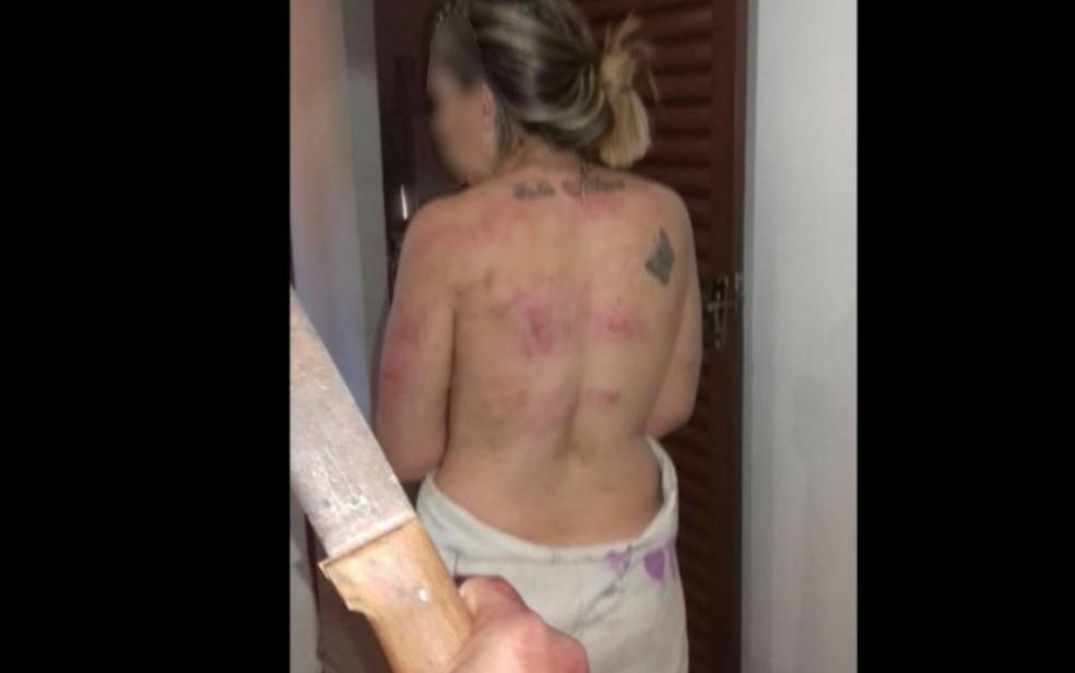 Mulher foi agredida pelo marido ciom facão em Pirenópolis (Foto: Divulgação/ Polícia Civil)