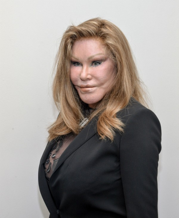 A socialite Jocelyn Wildenstein (Foto: Getty Images)
