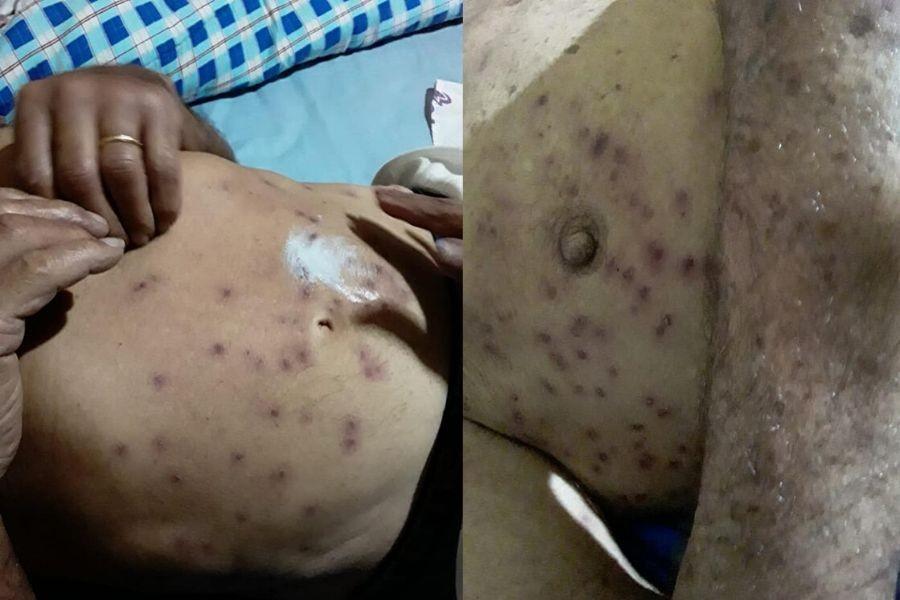 Idoso que levou mais de 100 picadas de abelhas em SP tem piora no quadro de saúde