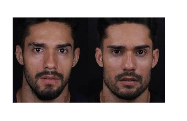 Arcrebiano também fez harmonização facial (Foto: Reprodução)