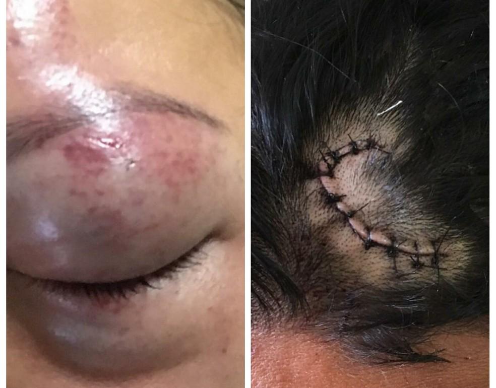 -  Vítimas de lesão corporal leve atendidas pela Deam de Santarém, em agosto de 2018  Foto: Polícia Civil/Divulgação