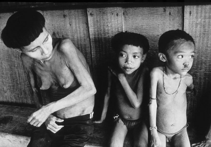 Mãe com seus filhos, subnutridos, na região de Surucucu, no Norte de Roraima, em 1991