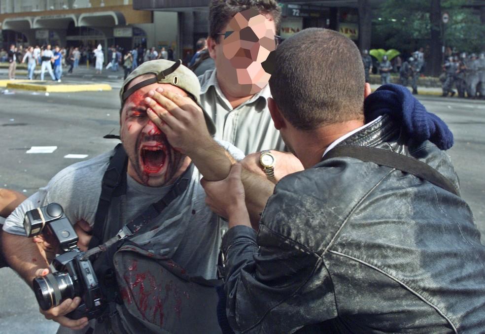 Fotógrafo Alex Silveira, foi atingido por uma balada de borracha durante protesto em SP em 2000 — Foto: Caio Guatelli