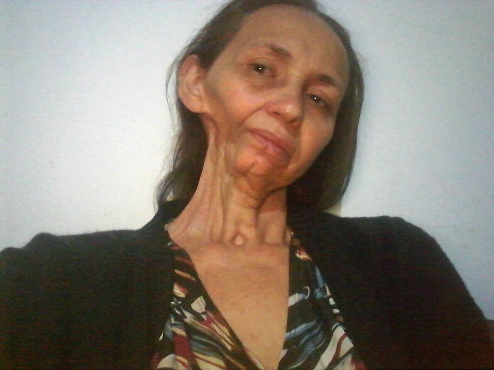 Geruza Oliveira, de 55 anos, teve parte de mandíbula retirada em cirurgia (Foto: Geruza Oliveira/Arquivo Pessoal)