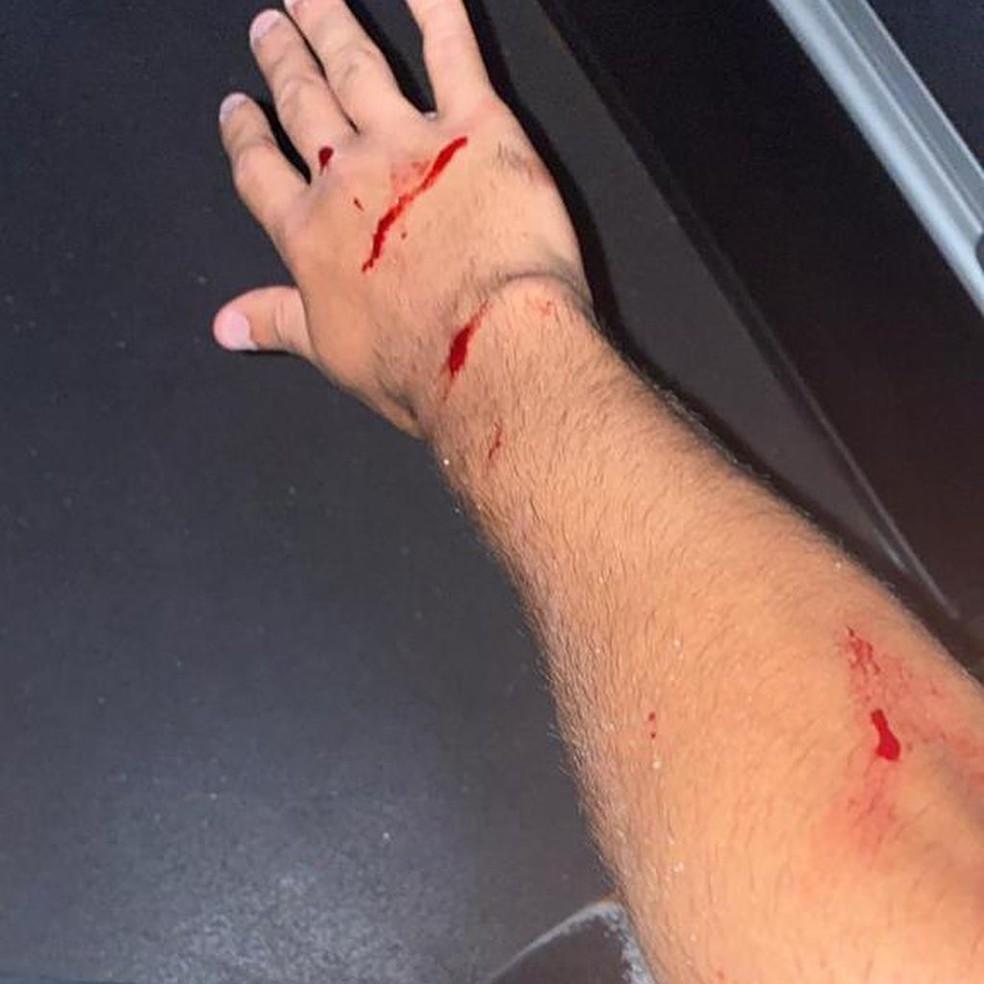 Estilhaços cortaram o braço do meia Locatelli  — Foto: Reprodução Redes Sociais
