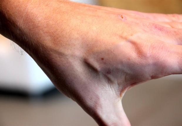Chip implantado na mão de um funcionário da companhia de marketing digital New Fusion (Foto: Javier Albisu/EFE)