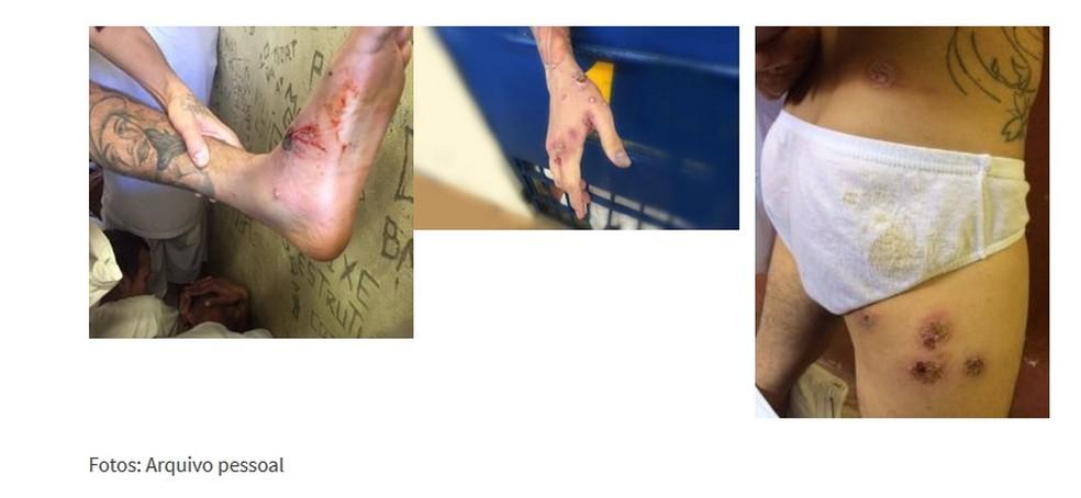 Foto do portal do Sindpen mostrando imagens de detentos da Papuda com sintomas de doença infecciosa  (Foto: Sindicato dos Agentes Penitenciários/Reprodução)