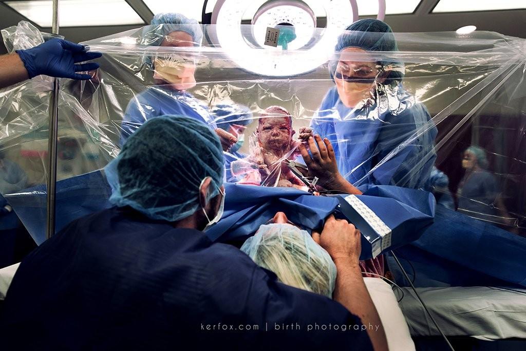 Cesárea com cortina transparente (Foto: Neely Ker-Fox, da  Ker-Fox Photography (United States))
