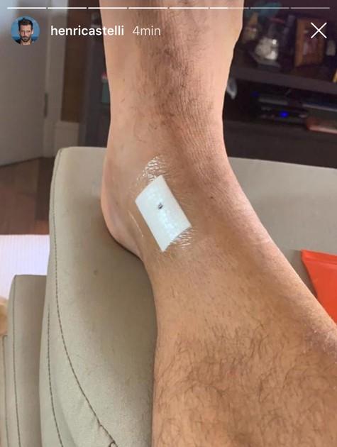 Henri Castelli mostra cirurgia no tornozelo (Foto: Reprodução)