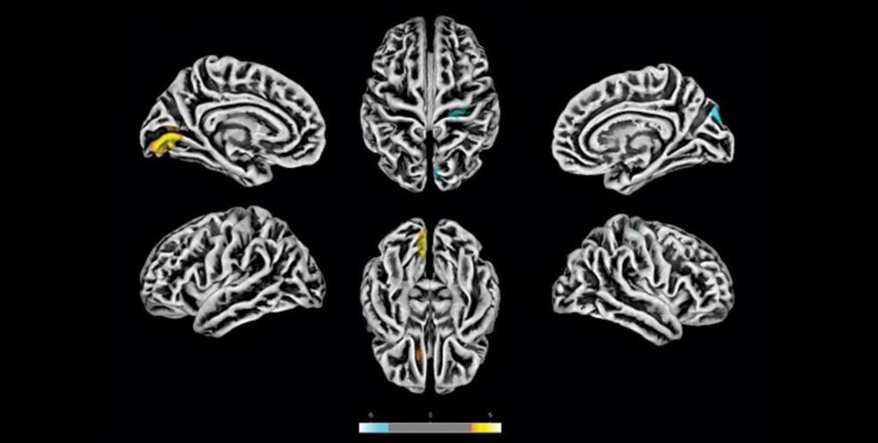 Covid afeta o cérebro e pode causar alterações mesmo em pacientes leves,  aponta estudo brasileiro | Coronavírus | G1