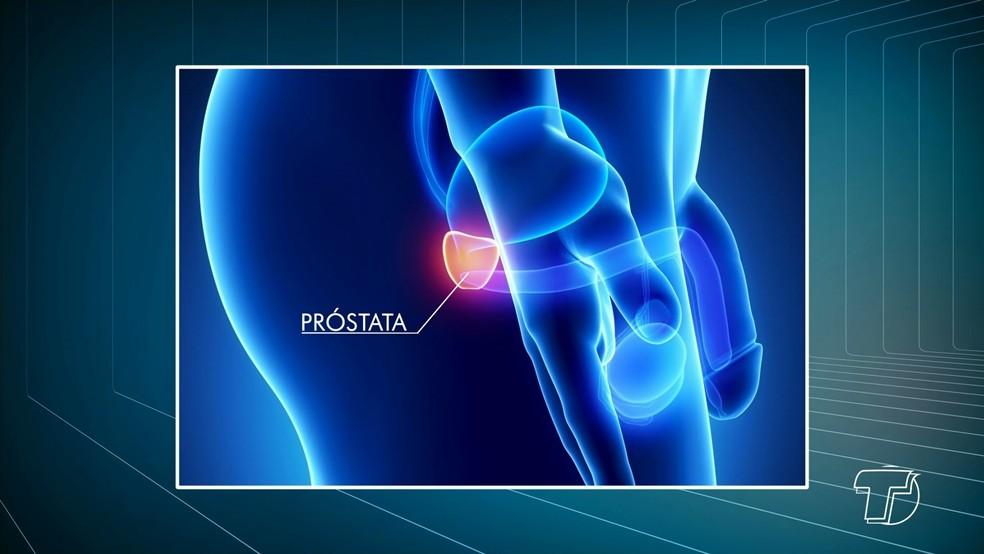 A próstata é uma pequena glândula localizada entre a bexiga e a pélvis do homem (Foto: Reprodução/TV Tapajós)