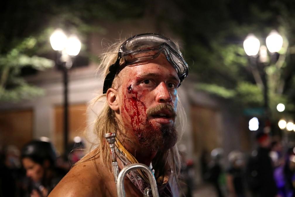 Manifestante ferido em protesto em Portland, na madrugada desta segunda (27) — Foto: Reurters/Caitlin Ochs