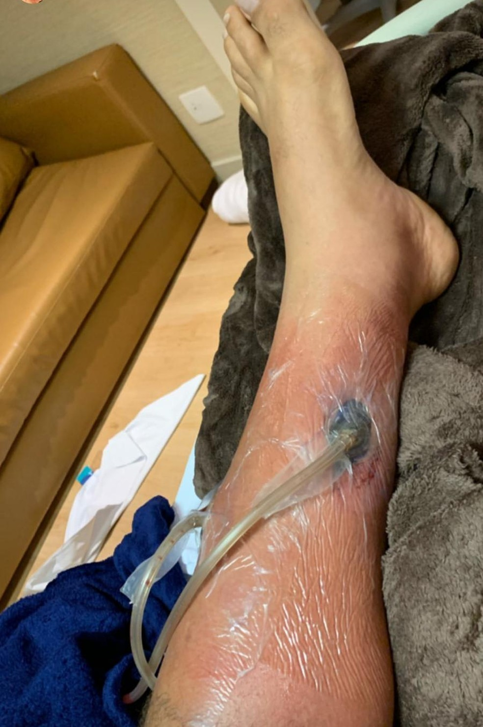 O dreno no outro lado da perna de Junior Cigano — Foto: Reprodução/Instagram