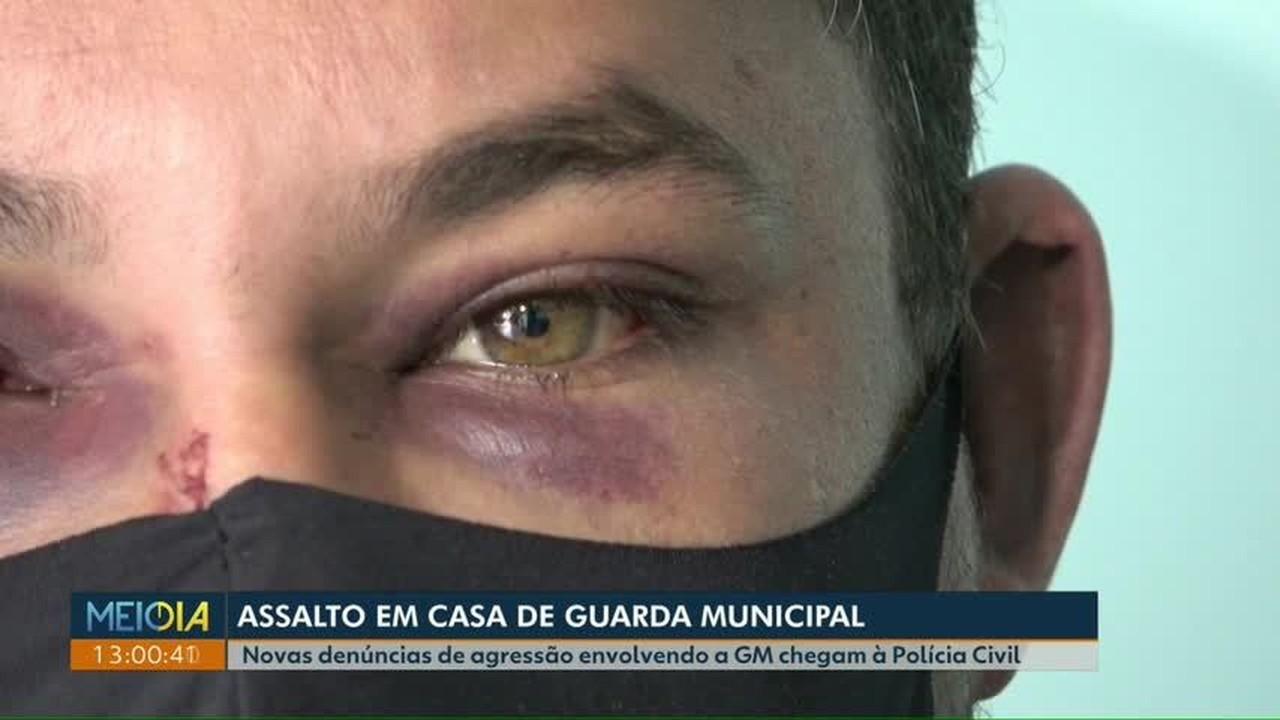 Novas denúncias de agressão envolvendo a Guarda Municipal chegam à Polícia Civil