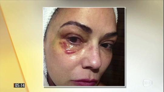 Justiça condena ex-marido de Luiza Brunet a um ano de prisão por agressão à modelo