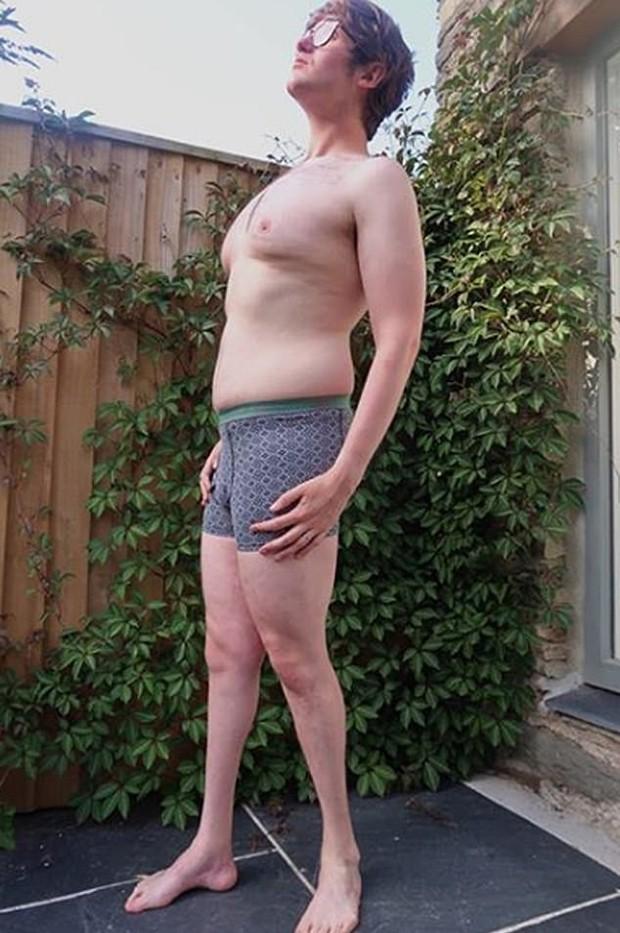 """Homem compartilha """"corpo real"""" nas redes sociais (Foto: Reprodução / Instagram)"""
