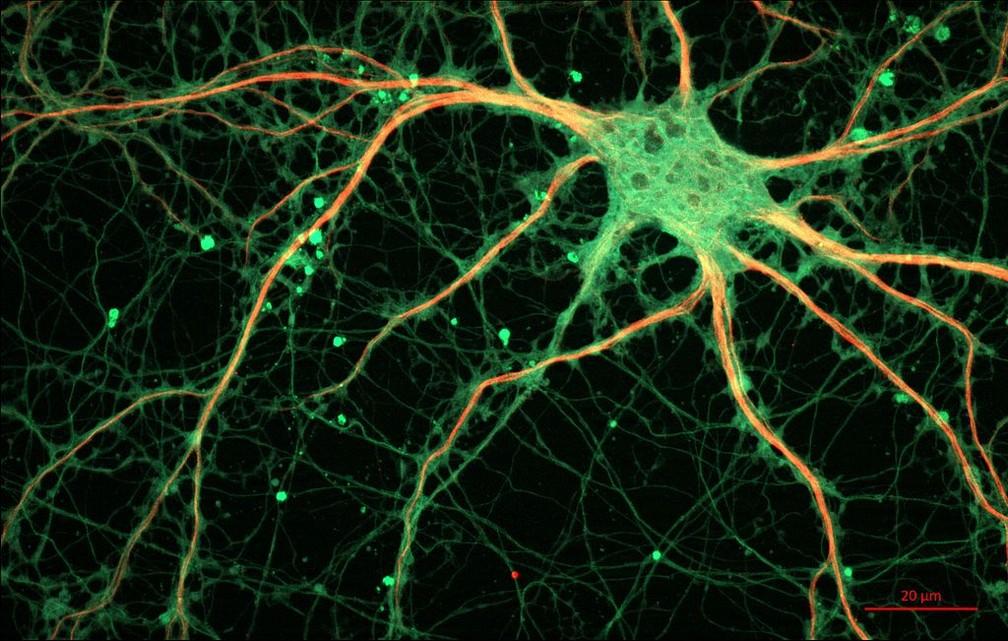 Colesterol favorece a aglomeração de placas tóxicas que favorece a morte de neurônios  (Foto: Wikimedia Commons)