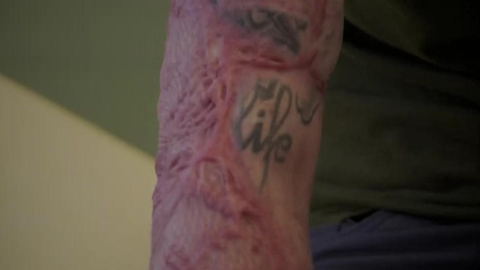 Tatuagem no braço de Franck foi queimada a não ser pela pequena parte com a palavra 'vida'  (Foto: BBC)