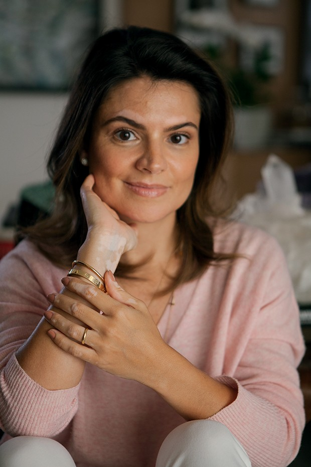 Sophia: A primeira mancha apareceu nas mãos, há  três anos (Foto: Helena Wolfenson)