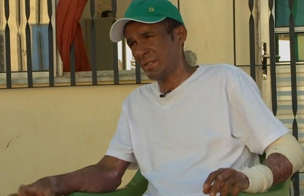 Márcio passou três meses internado após ataque (Foto: Reprodução/TV Mirante)