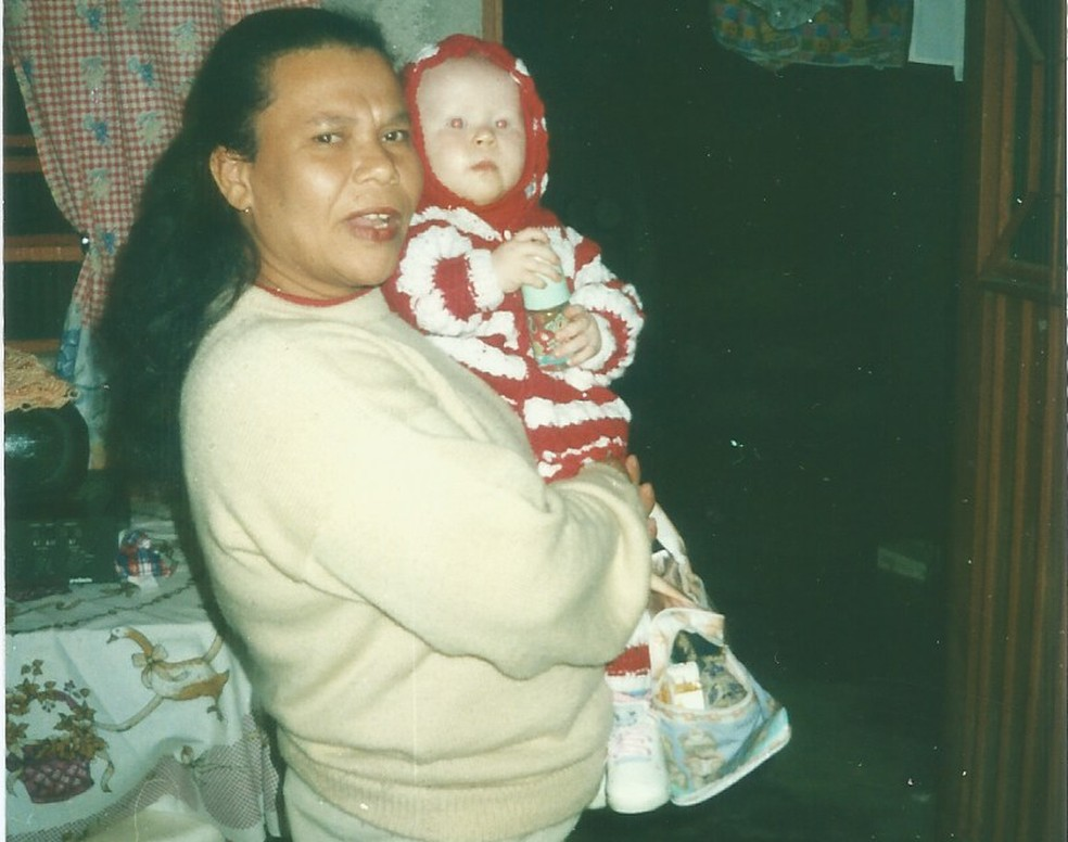 Ana Beatriz nasceu com albinismo. Na foto, ela está no colo da mãe.  — Foto: Arquivo pessoal