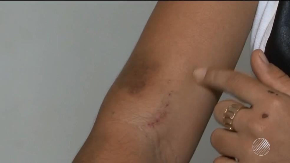 Jovem ficou com vários hematomas pelo corpo após agressões (Foto: Reprodução/TV Oeste)