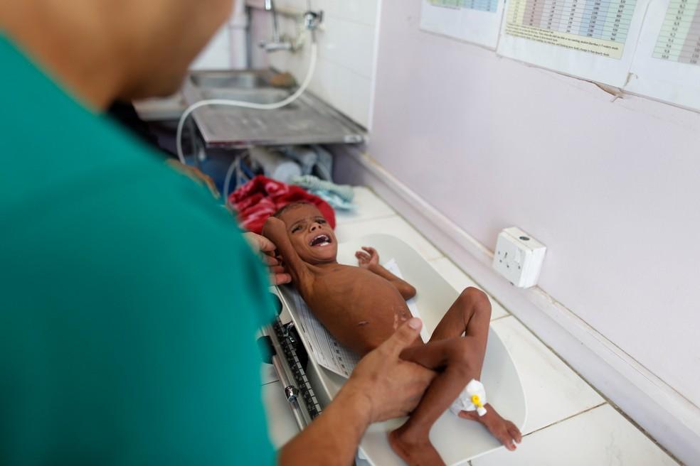 Criança sub-nutrida é atendida em hospital no Iêmen. — Foto: REUTERS/Khaled Abdullah