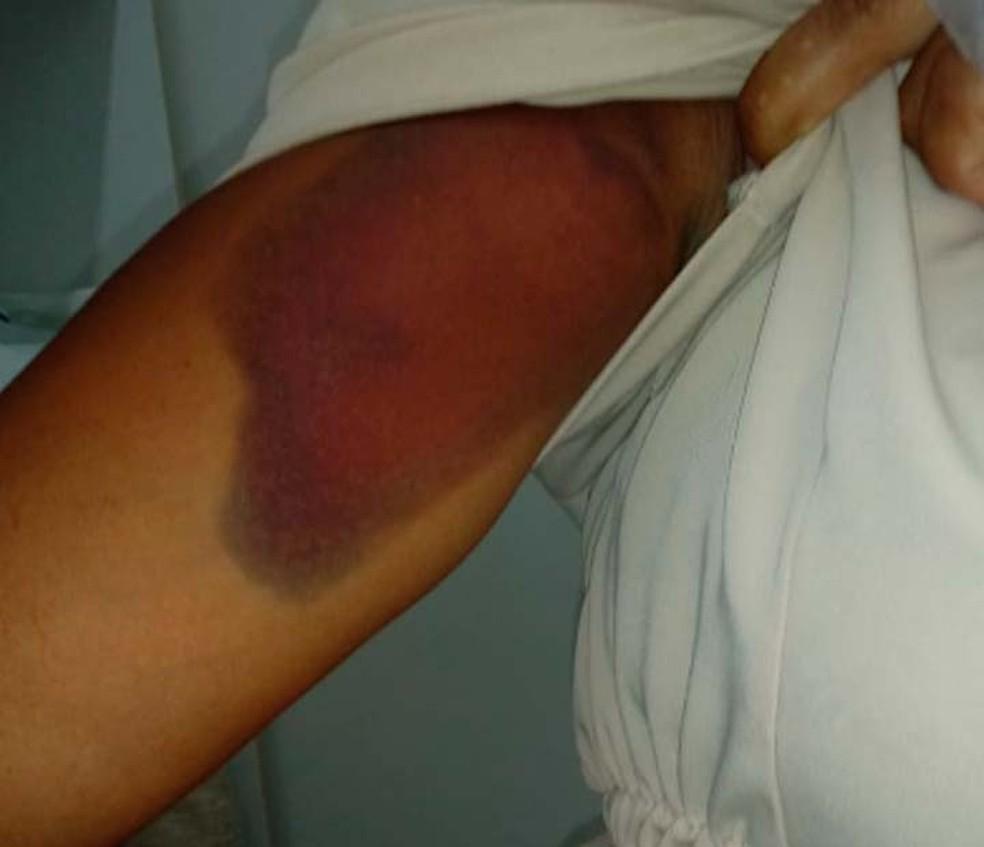 Hematoma no braço da mulher que foi agredida por assaltante no Bonfim, em Salvador — Foto: Arquivo Pessoal