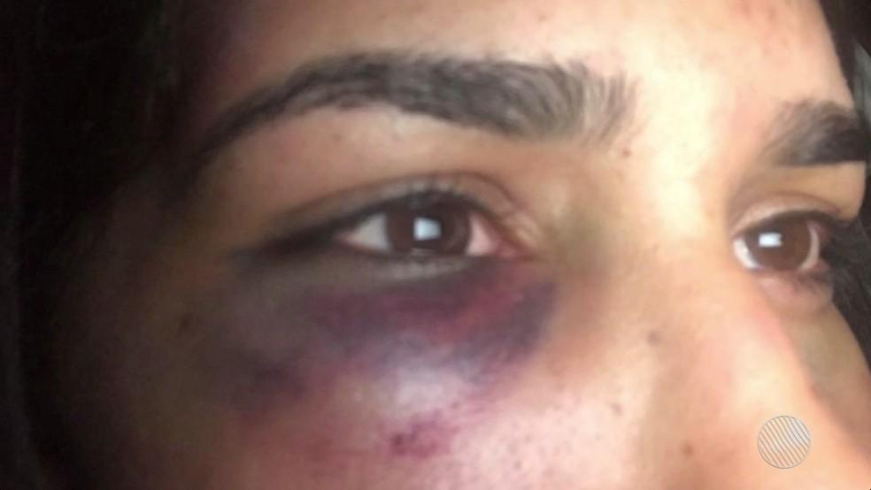 Clara foi espencada, torturada e teve os cabelos cortados pelo ex-marido (Foto: Reprodução/TV Bahia)