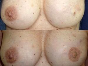 Projeto oferece restauração de aréola a mulheres após câncer de mama em Santos, SP (Foto: Regiane Lapetina/Arquivo Pessoal)