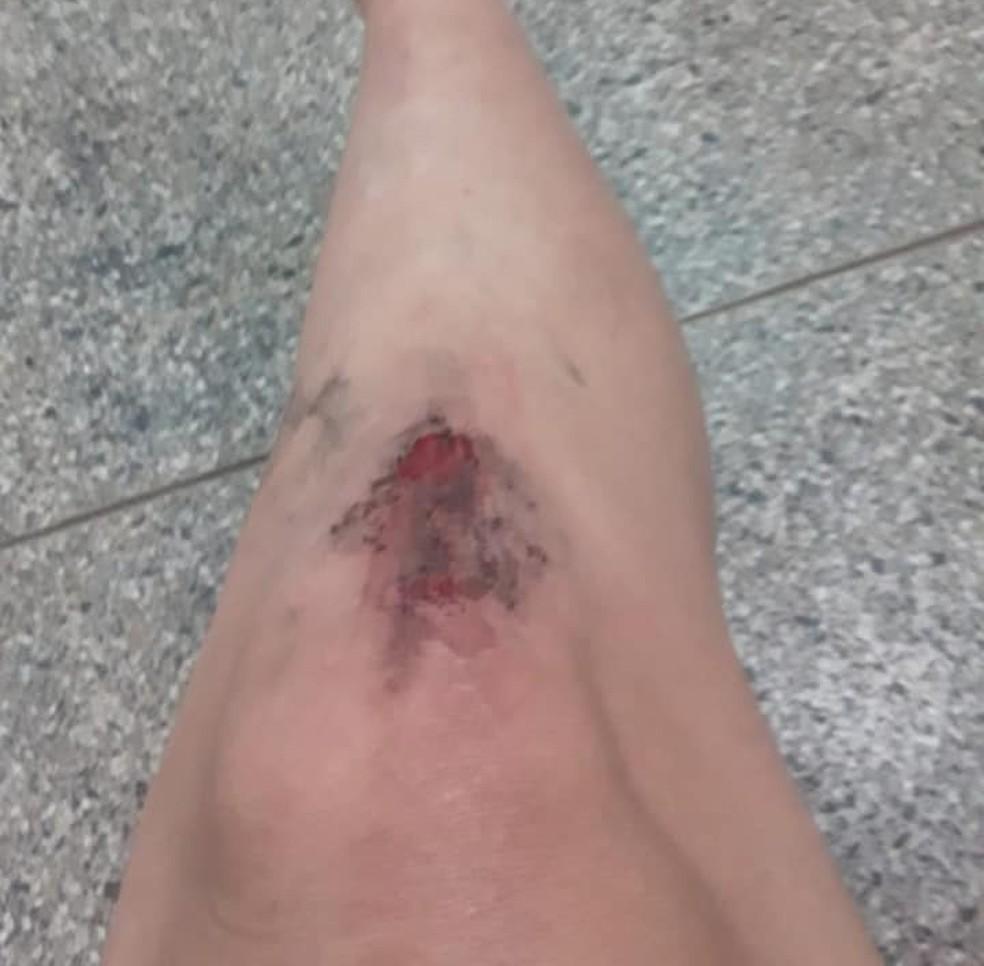 Cleide também teve lesão na perna após ataque do ex-marido — Foto: Arquivo Pessoal
