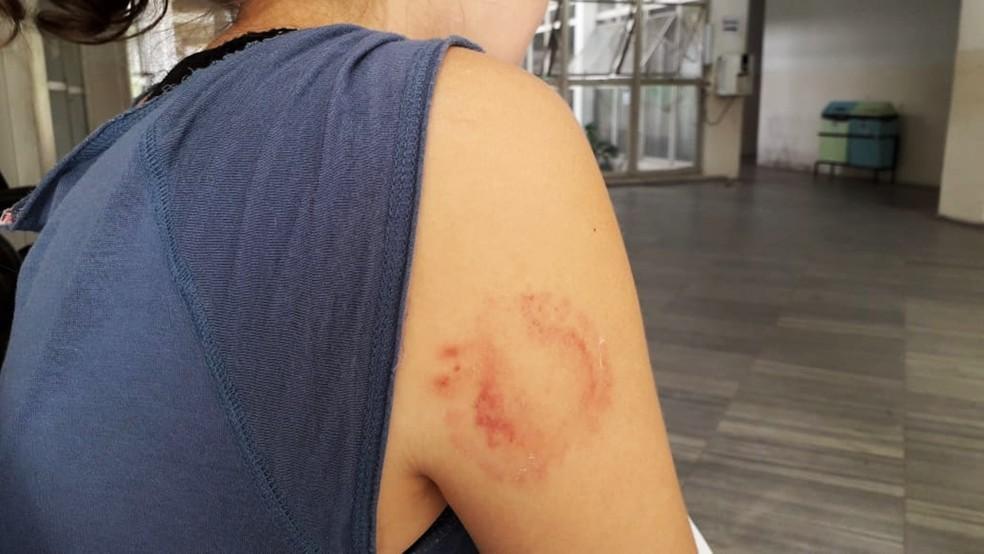 Vítima levou uma mordida no braço direito durante o assalto  — Foto: Klênyo Galvão/Inter TV Cabugi