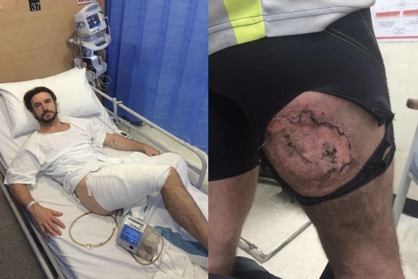 Gareth exibindo a queimadura (à direita) e depois de passar por cirurgia
