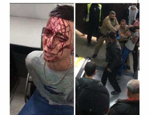 Vendedor ambulante denuncia agressão de seguranças da CPTM em estação da Linha 7-Rubi; veja vídeo