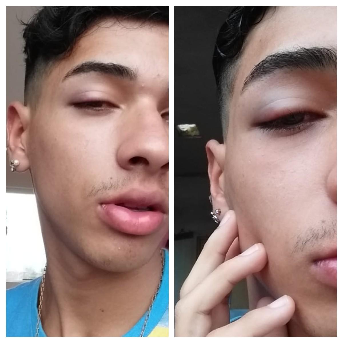 Jovem é agredido em bar no litoral de SP e denuncia homofobia na web: 'Não estamos seguros'