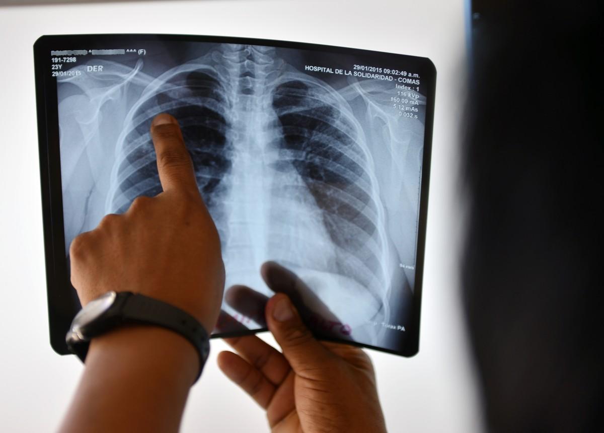 Especialistas alertam para risco de tuberculose multirresistente