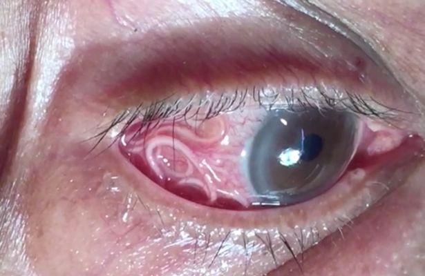 O verme estava alojado no olho de paciente (Foto: Divulgação)