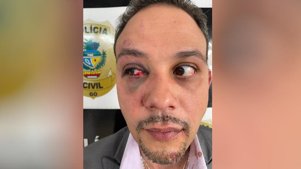 Advogado Orcelio Ferreira Silvério fica com hematomas após ser agredido por policial, em Goiânia, Goiás — Foto: Arquivo pessoal