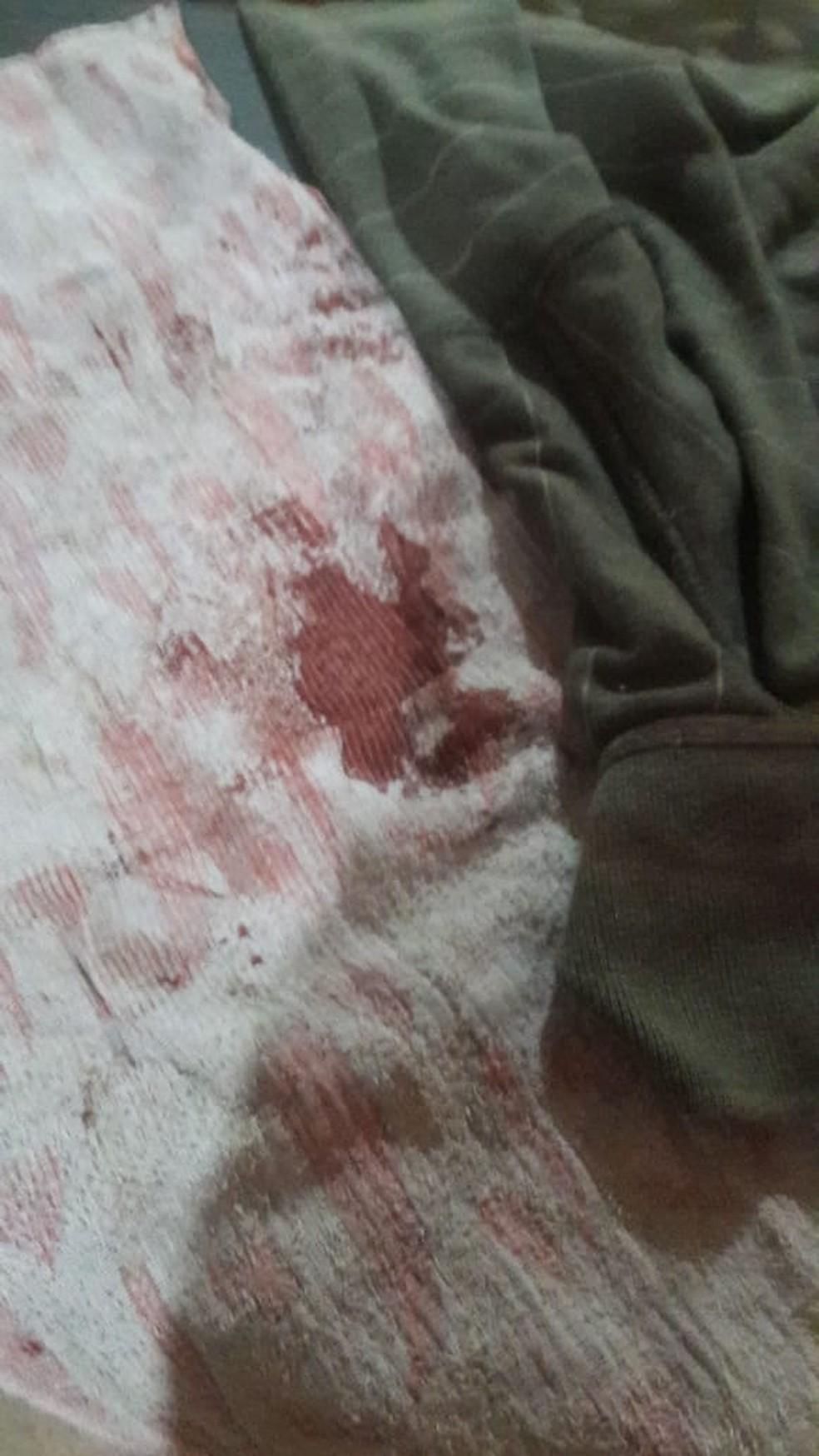Pano usado por Christian Frizzira para estancar o sangue. — Foto: Christian Frizzira/Arquivo pessoal
