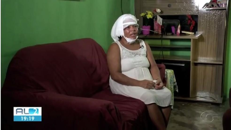 Erineide foi vítima de homem que jogou ácido nela e na irmã em Marechal Deodoro — Foto: Reprodução/TV Gazeta