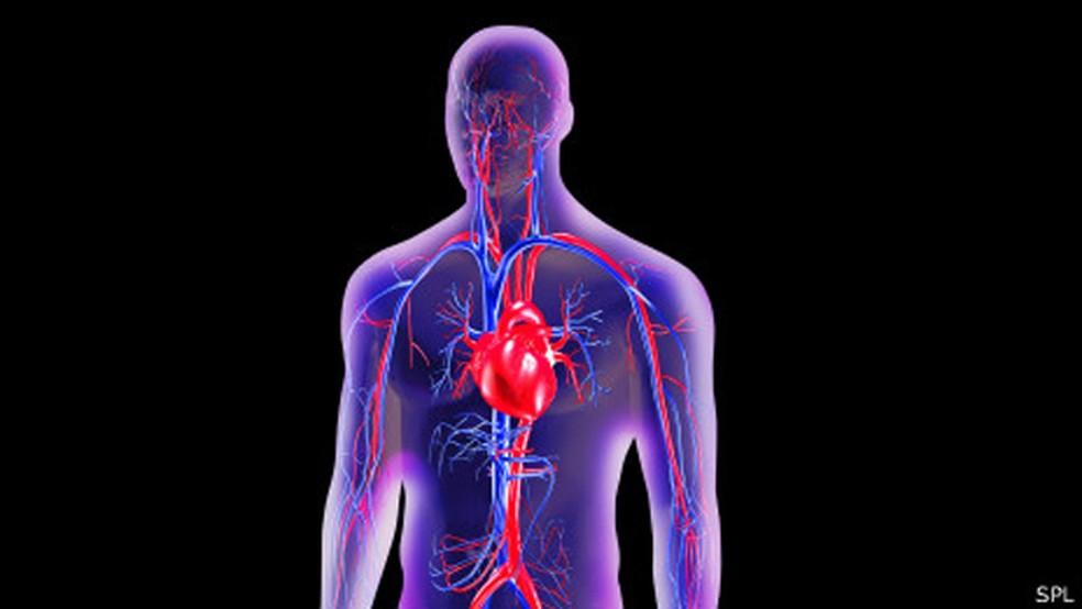 Embora o risco de infarto seja menor em mulheres, certos fatores de risco parecem ter um impacto maior sobre elas — Foto: BBC