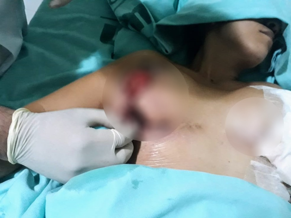 Empresária precisou operar as mamas mais duas vezes após complicações em cirurgia plástica na Venezuela — Foto: Reprodução/Redes Sociais