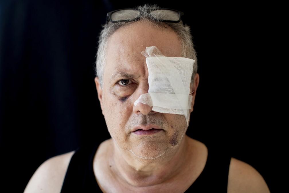 Tony Helou, 63, desempregado, ferido em seu apartamento durante explosão do dia 4 de agosto em Beirute, Líbano — Foto: Hassan Ammar/AP