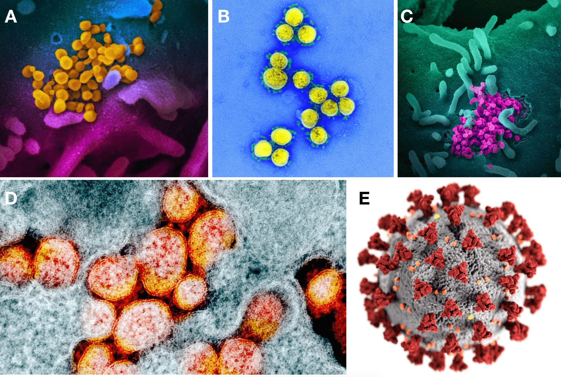 A, B, C, D: Primeiras imagens reais com cor falsa do coronavírus publicado em 13 de fevereiro de 2020 pelo NIAID. E: Primeiro modelo 3D de domínio público do coronavírus do CDC publicado em 30 de janeiro de 2020. (Foto: A, B, C, D, NIAID. E, Public Health Image Library (PHIL), de Alissa Eckert e Dan Higgins)