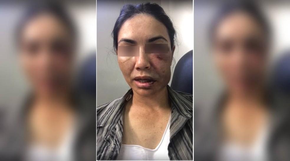 Motorista de transporte por aplicativo foi espancada por assaltantes — Foto: Divulgação