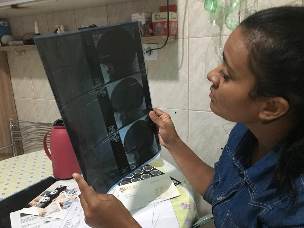 Leiliane Rafael olha um dos exames que fez para descobrir que tem doença rara — Foto: Glauco Araújo/G1