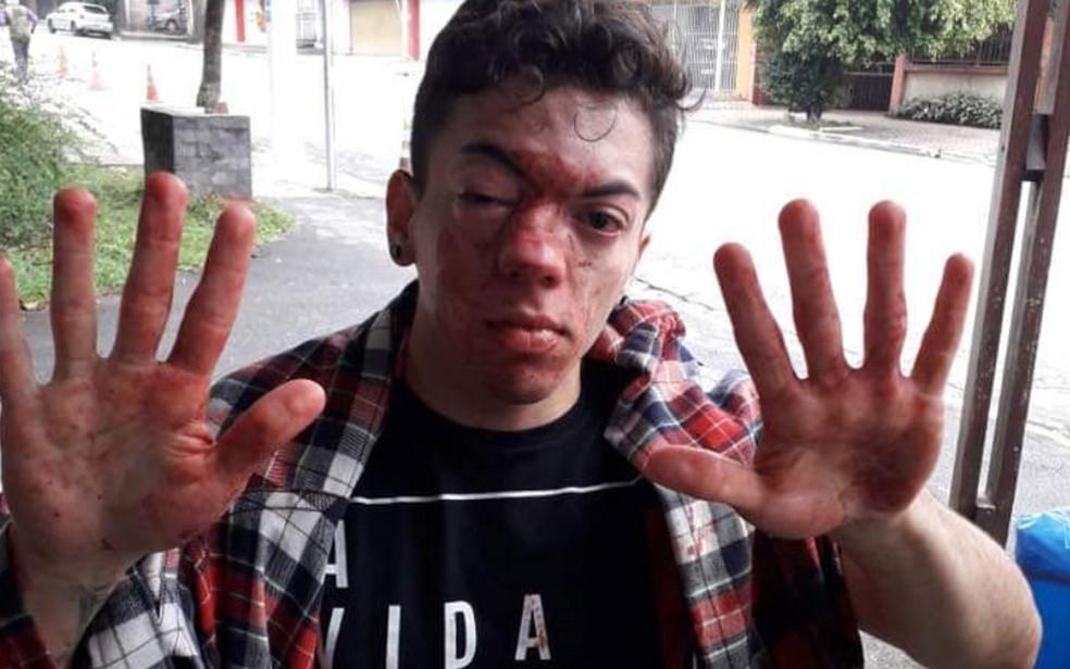 Marcello Santanna mostra resultado da agressão sofrida — Foto: Reprodução/Facebook
